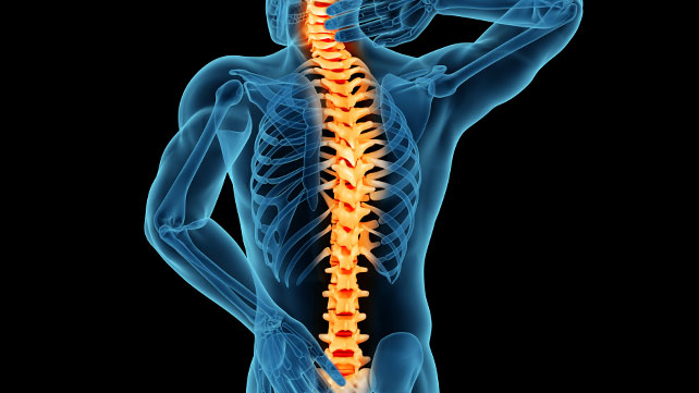 Michael Sinel, MD is a back bone specialist and author of several books related to spinal issues